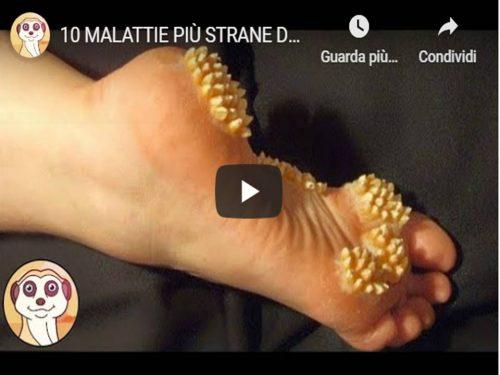 10 MALATTIE PIÙ STRANE DEL MONDO